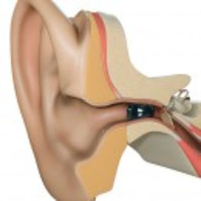 Starkey (U.S.A Made) Soundlens Synergy i2400 IIC 24 Channel Hearing Aid In Bangladesh